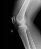Röntgenbild des perfekten Knies und des Beines Stockfotografie