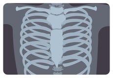 Röntgenbild, X-Strahlungsbild oder Röntgenbild der Rippe oder des Brust- Käfigs bildeten sich durch Wirbelsäule und Sternum mediz vektor abbildung