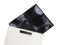 Röntgenfilm in der Abdeckung Lizenzfreie Stockbilder