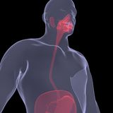 Röntgenfoto van een persoon. Pijnlijke spijsvertering Stock Afbeelding