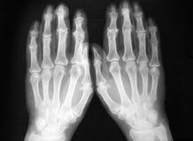 Röntgenfotografering av båda händer, avskiljer artrit Royaltyfri Fotografi
