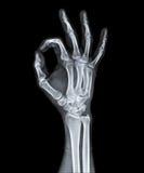 Röntgenfotografering av den mänskliga handen Royaltyfria Bilder