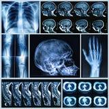 Röntgenfotografering av mänskliga ben Arkivfoto