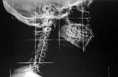 Röntgenfotografie Stockbild