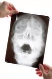 Röntgenogram Stock Foto's