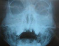 Röntgenogram Royalty-vrije Stock Foto's