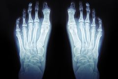 Röntgenstrålar av foten, medicinsk diagnostik för mänsklig fot arkivfoto