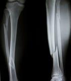Röntgenstråle av båda mänskliga ben (benbrott) Royaltyfri Bild