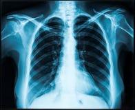 Röntgenstråle av bröstkorgen arkivfoton