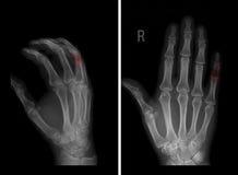 Röntgenstråle av chondromaen av den mellersta falangen av det 5th fingret av vänstersidahanden Patologi i röd markör royaltyfri bild