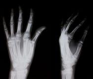 Röntgenstråle av den mänskliga handen Arkivfoton