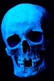 Röntgenstråle av den mänskliga skallen Arkivfoto