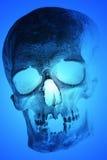 Röntgenstråle av den mänskliga skallen Royaltyfria Bilder