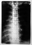 Röntgenstråle av det ryggrads- kortet Arkivfoton