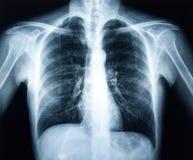 Röntgenstråle av en mänsklig torax Arkivbild