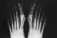Röntgenstråle av foten, valgusmissbildning av tån arkivfoton