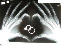 Röntgenstråle av händer i hjärtaform Arkivbild
