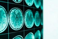 Röntgenstråle av huvudet och hjärnan, MRI, i defocus royaltyfri fotografi