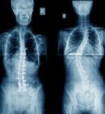 Röntgenstråle av scoliosismänniskan Arkivfoto