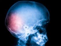 Röntgenstråle av skallen royaltyfri bild