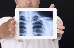 Röntgenstråle på den digitala minnestavlan Arkivfoto