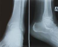 Röntgenstråleankelskarv med osteoarthritis royaltyfria bilder