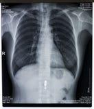 Röntgenstrålebild av bröstkorgen Arkivfoton
