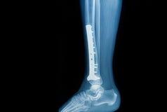 Röntgenstrålebild av brottbenet (tibia) med implantatet Arkivbild