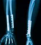 Röntgenstrålebild av den brutna underarmen Arkivbild