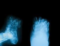 Röntgenstrålebild av den diabetiska fotamputationen Arkivbilder