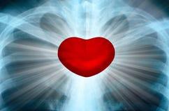 Röntgenstrålebild av den mänskliga bröstkorgen med energi som utstrålar från hjärta Chakra Royaltyfri Bild