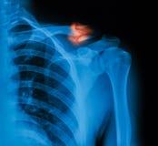 Röntgenstrålebild av det brutna nyckelbenet Royaltyfri Fotografi