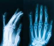 Röntgenstrålebild av handen, AP och den sneda sikten Royaltyfria Bilder