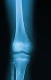Röntgenstrålebild av knäleden royaltyfri foto