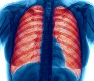 Röntgenstrålebild av lungainfektion Arkivfoto