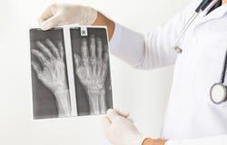 Röntgenstrålebild av människahänder, doktor som undersöker en lungaröntgenfotografering, doktor som ser bröstkorgröntgenstrålefil Royaltyfri Foto