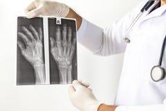 Röntgenstrålebild av människahänder, doktor som undersöker en lungaröntgenfotografering, doktor som ser bröstkorgröntgenstrålefil Arkivbilder