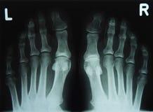 Röntgenstrålebild av tårna Arkivfoton