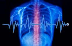 röntgenstrålebild och EKGlinje Arkivbild