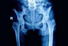 Röntgenstrålebildbäcken och höft Fotografering för Bildbyråer