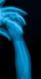 Röntgenstrålebilden av behandla som ett barn handbrott Arkivbilder