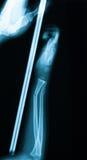 Röntgenstrålebilden av behandla som ett barn underarmenbrott arkivfoton