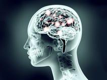 Röntgenstrålebilden av det mänskliga huvudet med hjärnan och elkraft pulserar Arkivbild