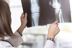 Röntgenstrålebildläsning Arkivfoton