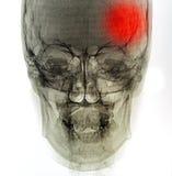 Röntgenstrålebildläsningsmänniska arkivbild