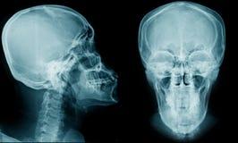 Röntgenstrålebildsido och frontal sikt arkivfoton
