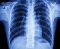 Röntgenstrålebröstkorg Arkivfoto