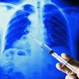 Röntgenstrålebröstkorgfilm och injektionsspruta Arkivbilder