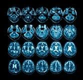 Röntgenstrålefilm av den beräknade tomographyen för hjärna royaltyfri fotografi