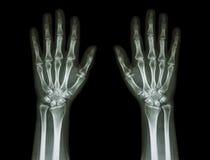 Röntgenstrålehänder (främre sikt): Normala människahänder Royaltyfria Bilder